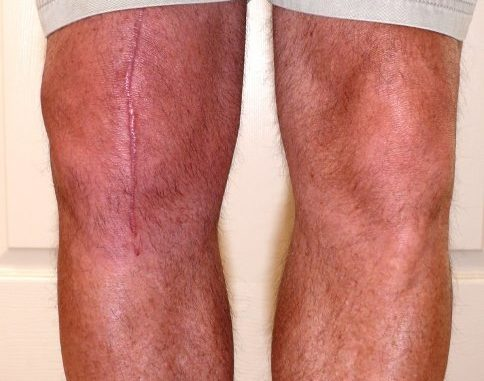 Busting the myths about knee surgery